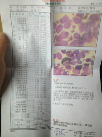 白血病 淋巴细胞 急性/[主要症状]急性淋巴细胞白血病有哪些表现?...